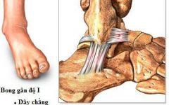 Cách chữa bong gân cổ chân hiệu quả