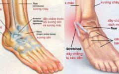 Phải làm gì khi bị lật sơ mi cổ chân